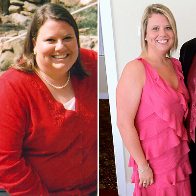 before-and-after-weightloss-400